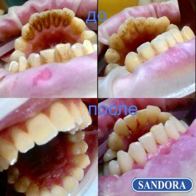 профессиональная чистка зубов Киев