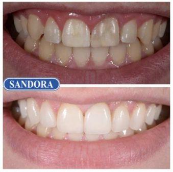 Пациенту исправили улыбку при помощи 8 виниров на верхних зубах