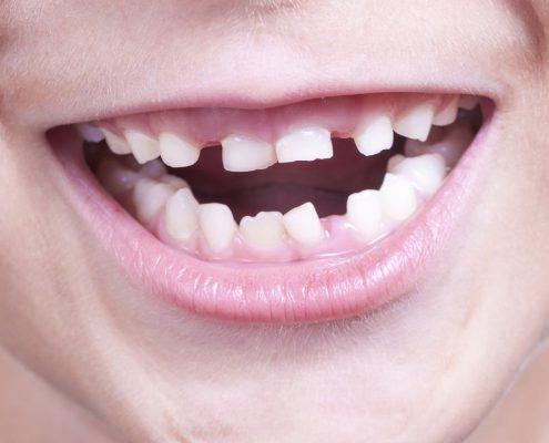 baby_teeth_1280